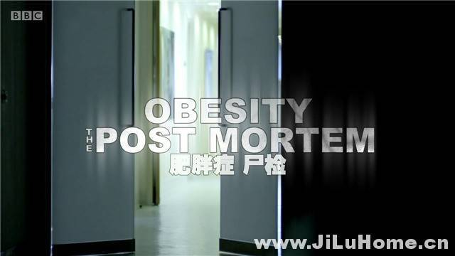 《解剖肥胖/肥胖症:尸检 Obesity: The Post Mortem (2016)》